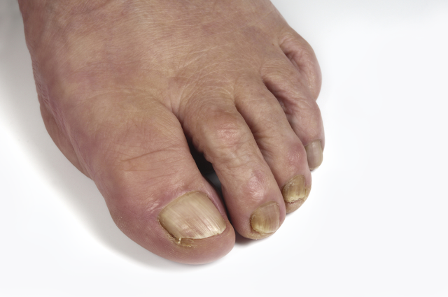 Overige risico voet